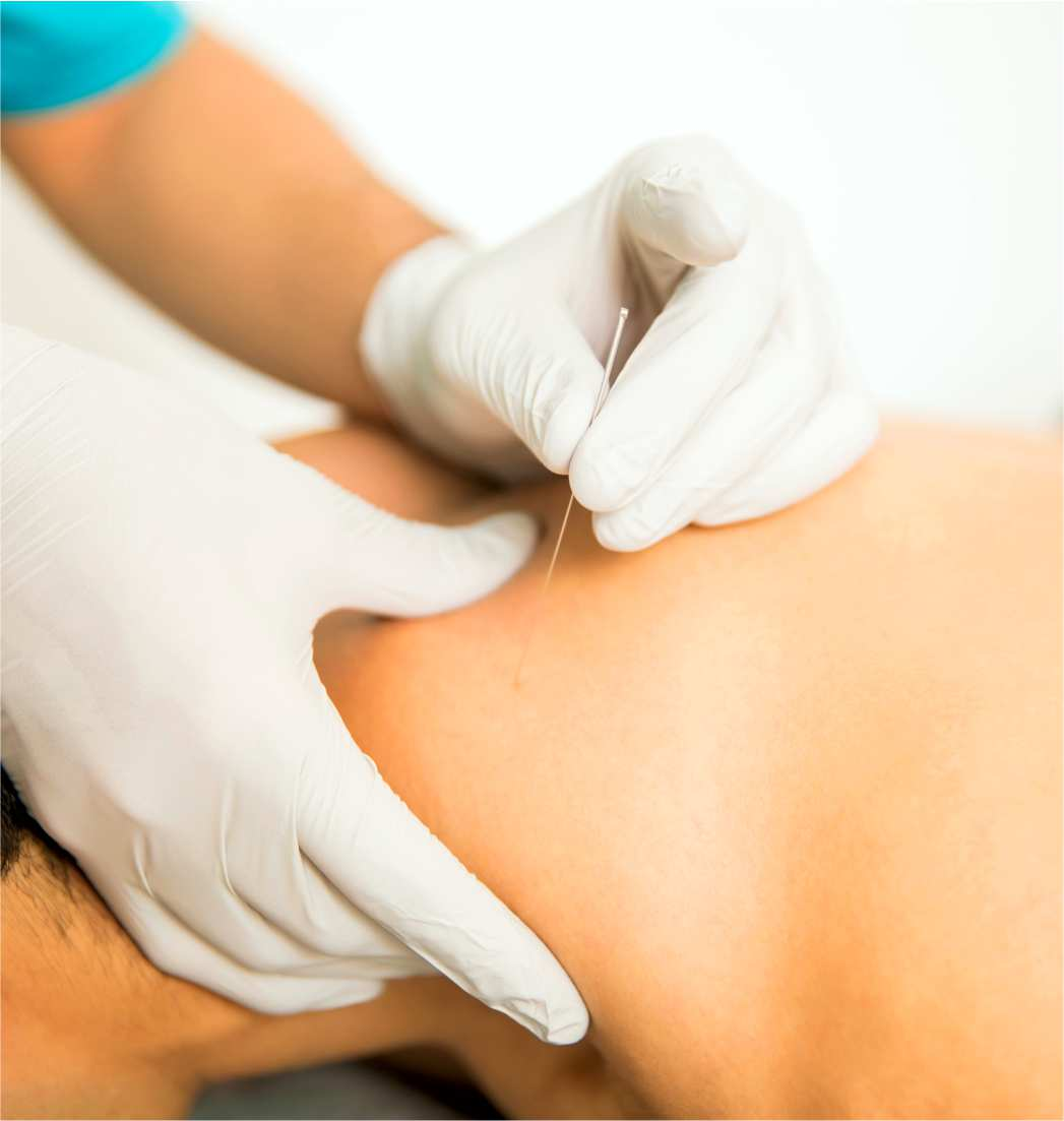 Dry needling can provide pain relief. We offer dry needling for pain management